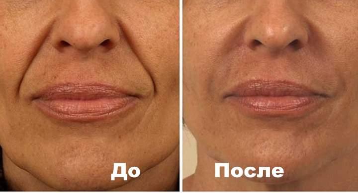 До и после коррекции носогубок. Фото 2