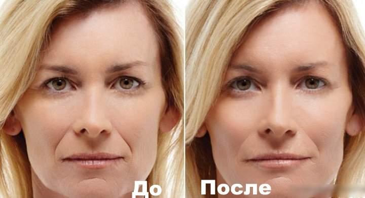 До и после коррекции носогубок. Фото 1