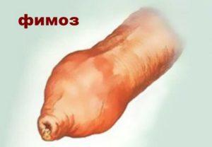 Заболевание фимоз