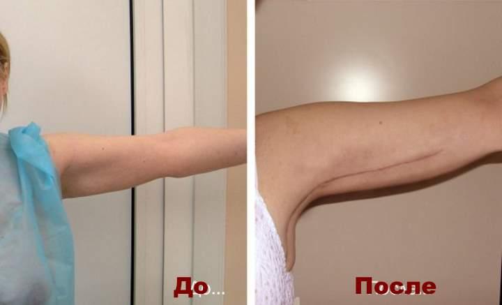 1 фото до и после брахиопластики