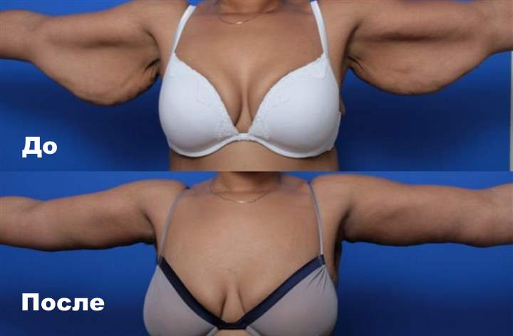 3 фото до и после брахиопластики