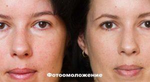 До и после фотоомоложения