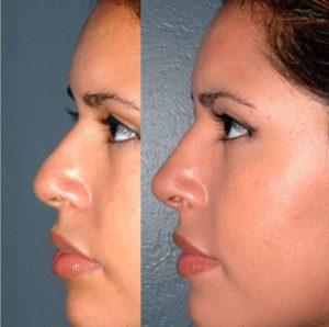 Коррекция носа филлерами