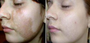 Кожа лица до и после