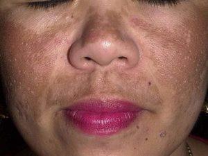 Обширное пятно на лице