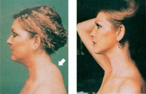 Горб на шее до и после