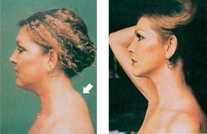 Горб на шее у женщин как избавиться