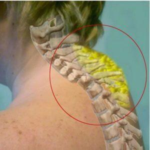 Как образуется горб на шее