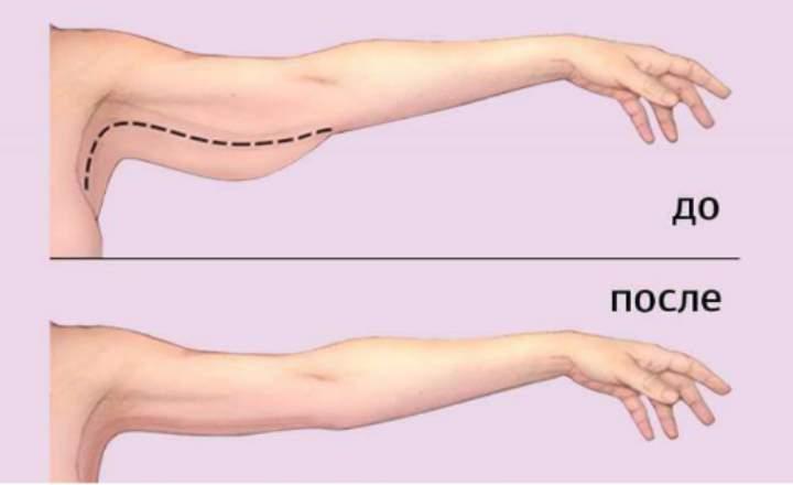 операции по подтяжке кожи рук - классическая