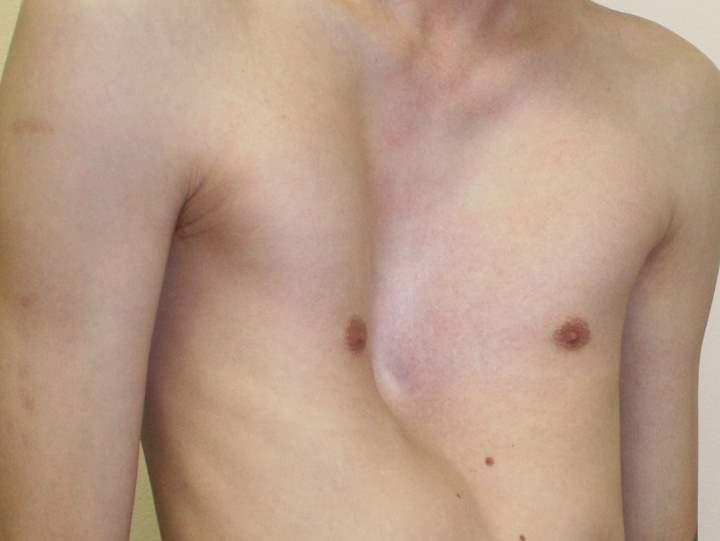 Неправильное строение грудной клетки