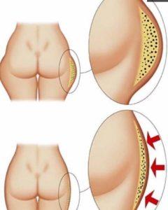 Схема липопластики
