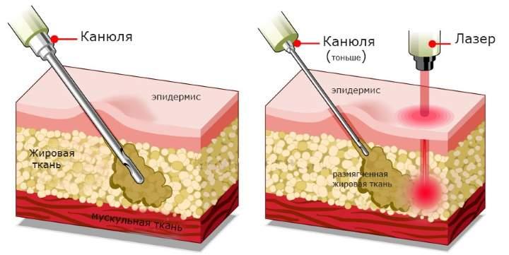 Сравнение липосакций