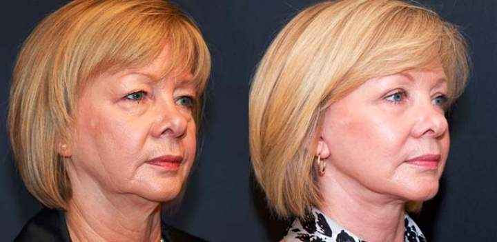 Женщина 60 лет до и после липосакции щек