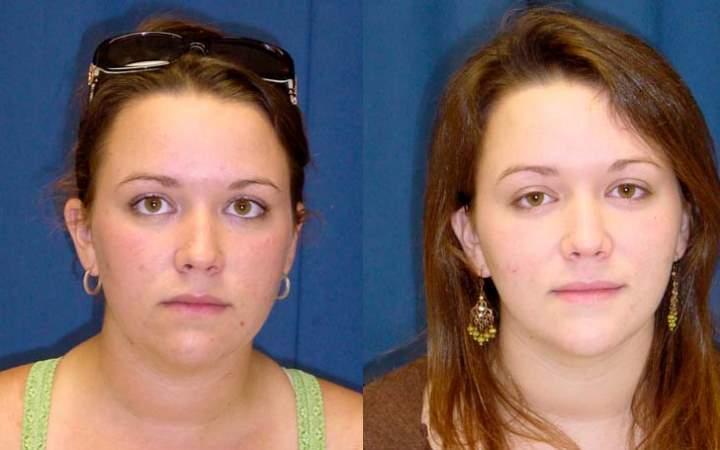 Молодая девушка до и после липосакции щек