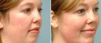 Восстановление овала лица