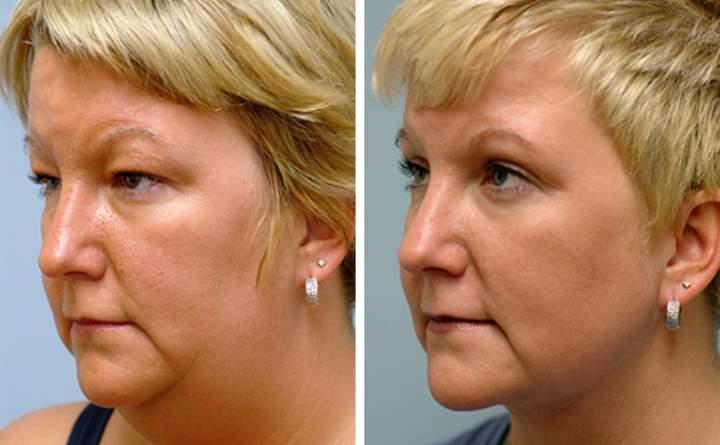 Женщина до и после липосакции щек