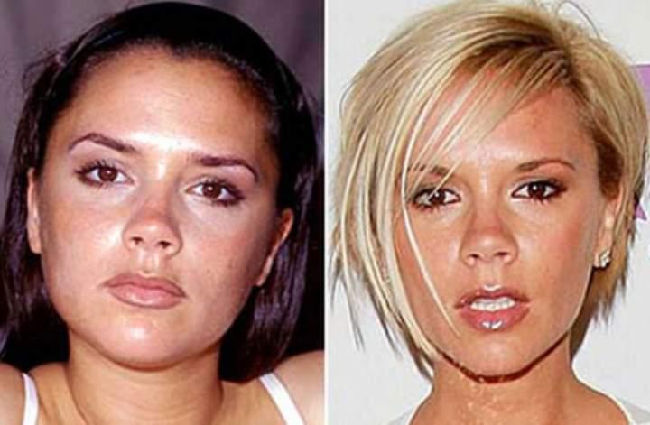 Фото до и после липосакции щек