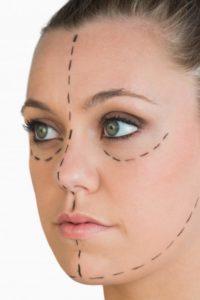 Перед липосакцией лица