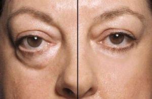 До и после коррекции мешков под глазами
