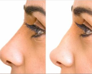 Нос без операционной ринопластики