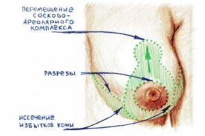 Рисунок техники пластики груди