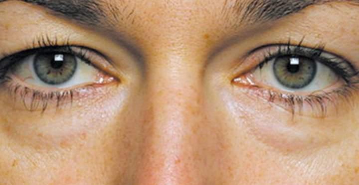 У девушки мешки у глаза