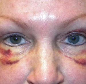 Внешний вид лица после блефаропластики