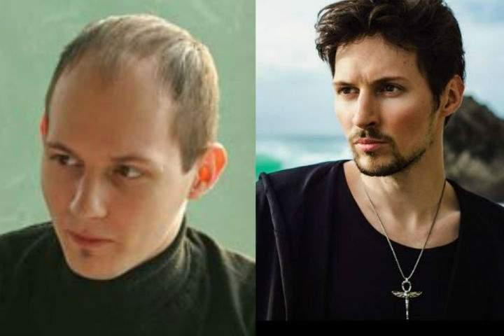 Фото Дурова до и после пластики