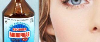 Молочная кислота для красивой кожи