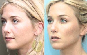 Лицо до и после пластики скул