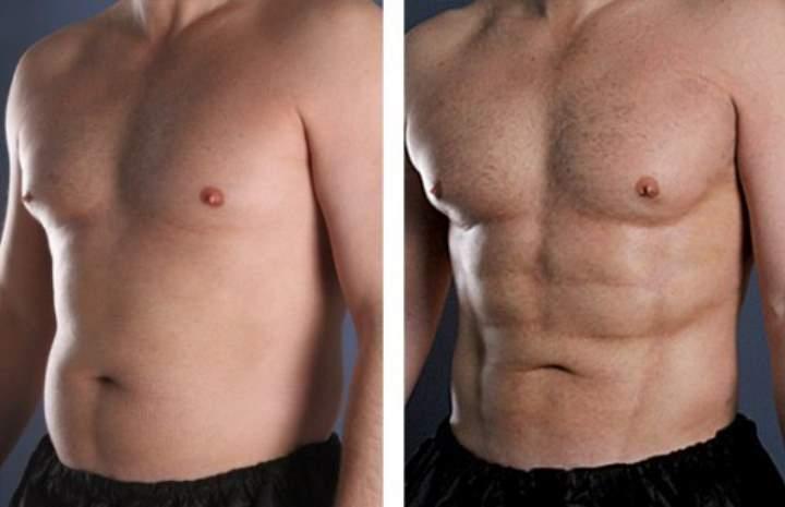 До и после адоминопластики