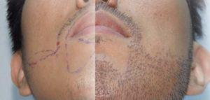 Разметка для бороды