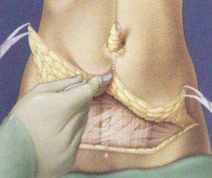 Рисунок работы хирурга по абдоминопластике