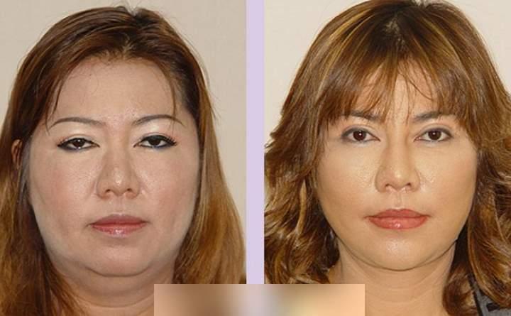 Пациент до и после липосакции щек