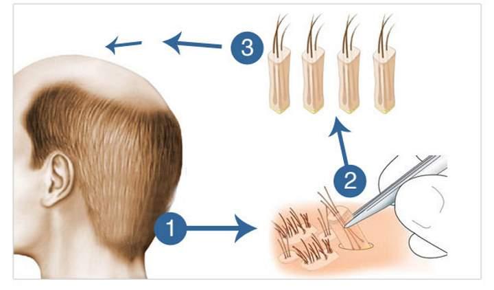 Рисунок, как происходит трансплантация волос