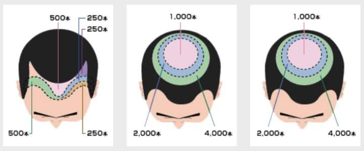Три схемы пересадки волос