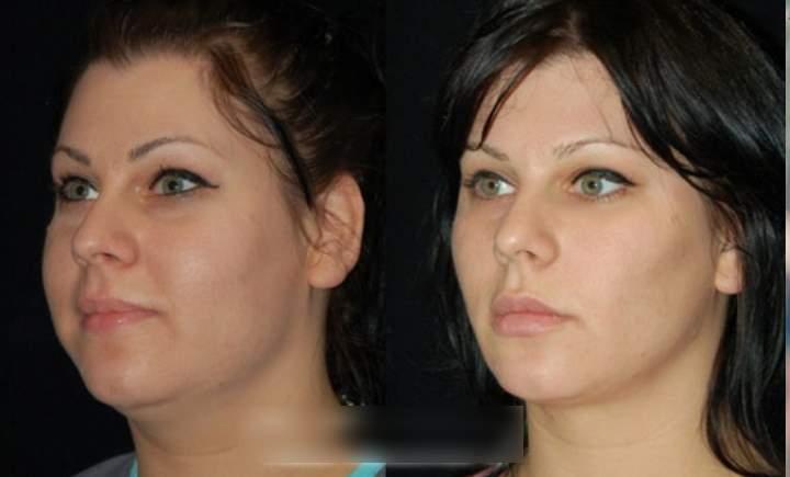 До и после изменения круглых щек