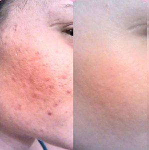 До и после изменений пор на лице