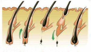 Схема выхода волос