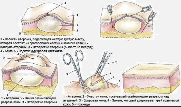 Рисунок лечения атеромы
