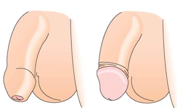 Способы коррекции короткой уздечки крайней плоти