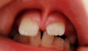 Когда удаление уздечки верхней губы возможно