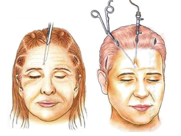 Эндоскопический лифтинг лица. Схема проведения