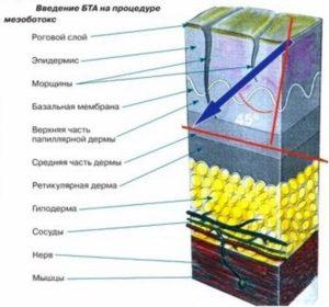 Строение кожи и ботокс