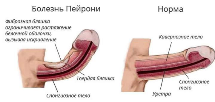 Рисунок кривого полового члена