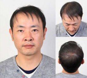 Фото японца после пересадки волос