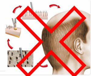 Противопоказания на операцию по пересадке волос
