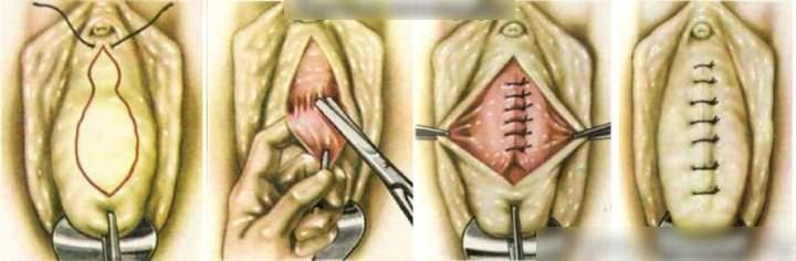 Средство от широкого влагалища - хирургия
