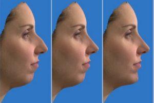 Модель после изменения носа