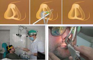 Схема септоринопластики